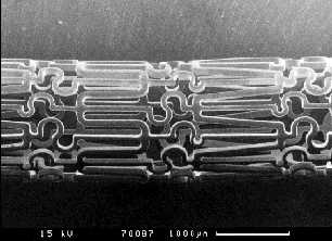 Fig 1. Photograph of stent (prior to expansion)